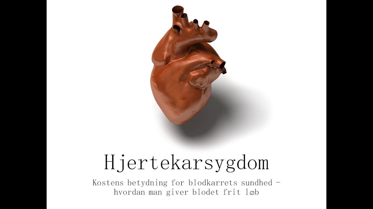 Hjertekarsygdom -  hvordan man giver blodet frit løb - Lægestuderende  Joachim Broegaard