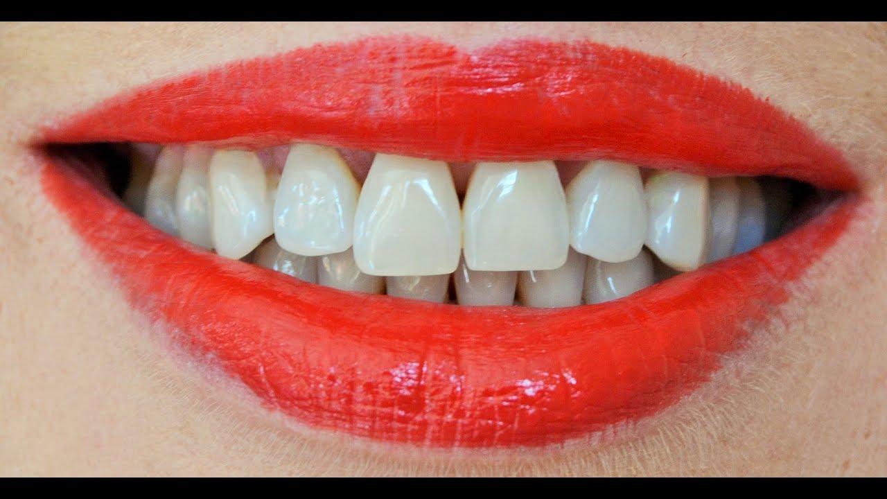 Como blanquear los dientes en casa r pido youtube - Como blanquear los dientes en casa ...