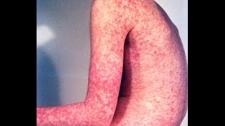 Rubella Virus (German Measles)