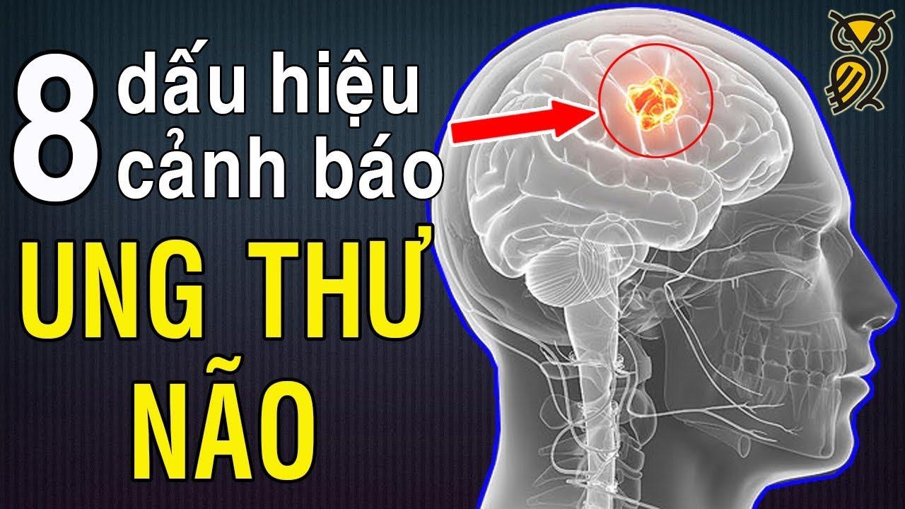 Những Dấu Hiệu Của Bệnh UNG THƯ NÃO Không Thể Bỏ Qua – Triệu chứng của bệnh Ung Thư Não