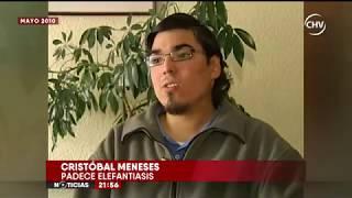 La nueva vida de un joven que se operó por su elefantiasis - CHV Noticias