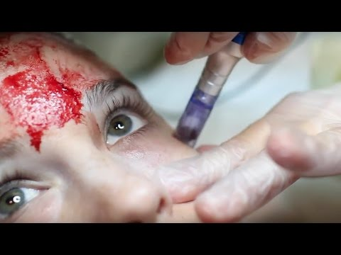 PRP Plasma Facial Micro Needling Procedure YouTube