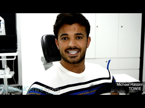 Michael Hassini from TOWIE | Smile Makeover, Veneers, New Teeth...