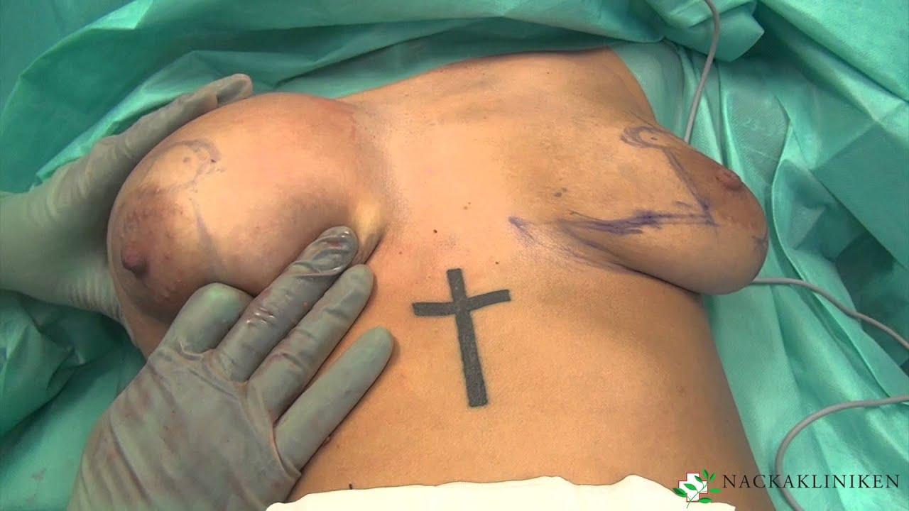 bröstlyft och förstoring pris
