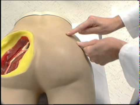 Dorsogluteal Injection Site