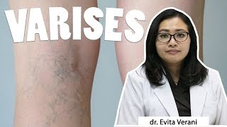 Ayo Hidup Sehat tvOne membahas tentang Tidak Ingin Varises, Ini Caranya bersama dr. Haekal Anshari, .