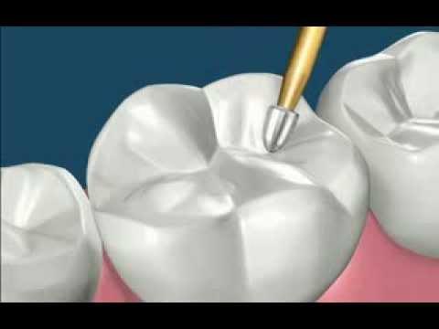 Процедура пломбирования зубов