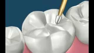 Процедура пломбирования зубов(, 2014-03-02T19:29:52.000Z)