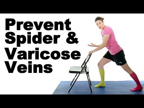 Prevent Varicose Veins & Spider Veins Ask Doctor Jo