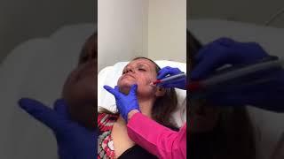 Καθαρισμός προσώπου με μικρό κρυστάλλους - Δρ. Μουσάτου