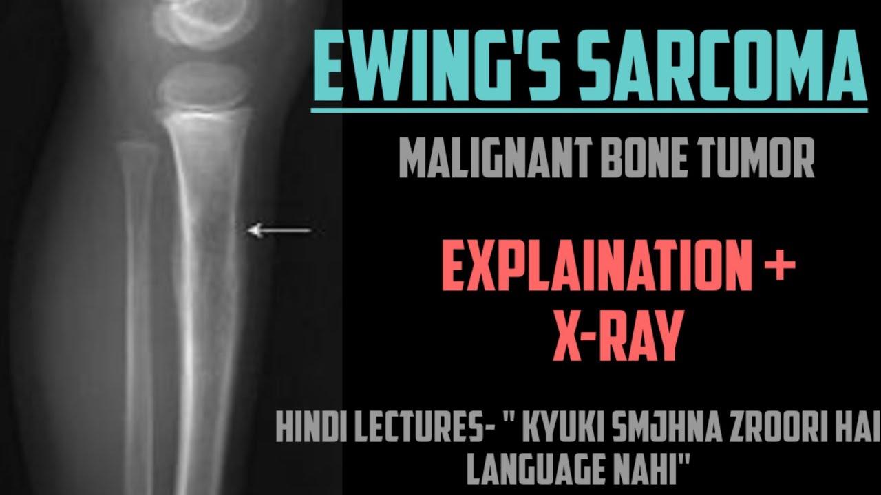 Rák ewing szarkóma, Ewing-szarkóma
