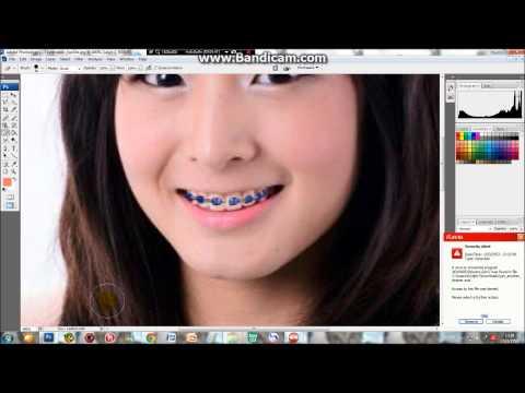สอนใส่เหล็กดัดฟันโดยใช้โปรแกรม ps (2)