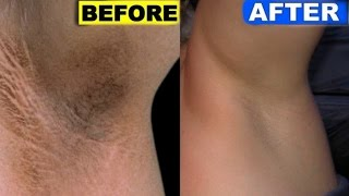How To Lighten Dark Underarms Naturally & Permanently In 3 Days!