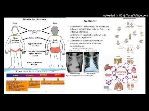 Pediatric Scrub typhus AND Multiple organ dysfunction syndrome
