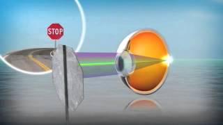 Контактные линзы AirOptix Aqua Multifocal - лидер контактной коррекции(opticland.com.ua купить с доставкой Компания CIBA Vision представляет новые мультифокальные контактные линзы Air Optix..., 2013-03-22T22:26:00.000Z)