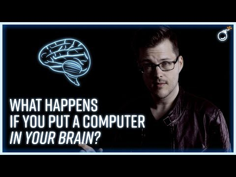 What Happens If You Put a Computer in Your Brain?