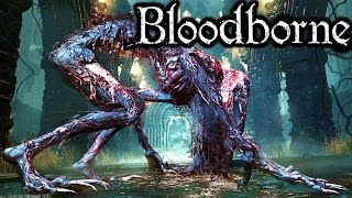 Bloodborne Blood-Starved Beast Boss Old Yharnam Alfred Summon PART 6 Gameplay Walkthrough PS4