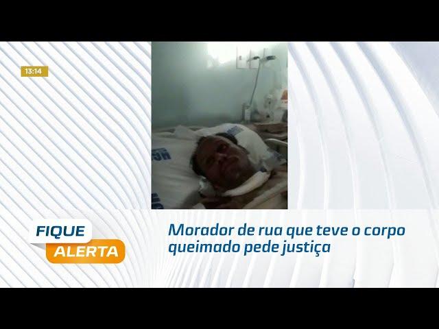 Morador de rua que teve 35% do corpo queimado pede justiça