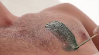 видео мужская депиляция