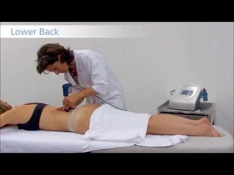 hqdefault - Shock Therapy For Back Pain