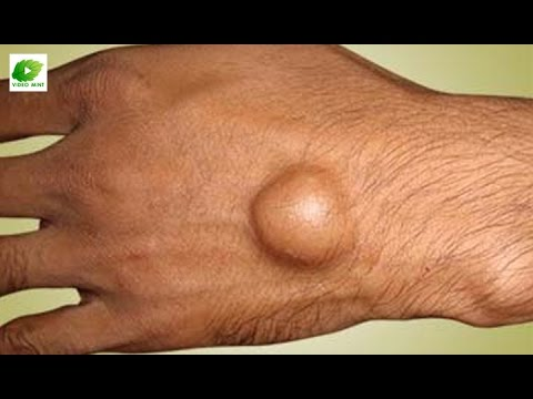How to Dissolve Ganglion - Calcium Deposits - YouTube