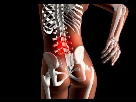 Quieres más de tu vida Dolor de espalda alta Dolor de espalda alta Dolor de espalda alta