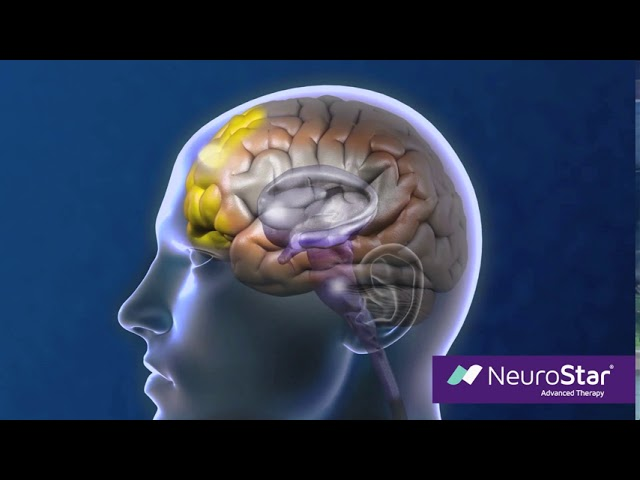 How NeuroStar TMS Therapy Works