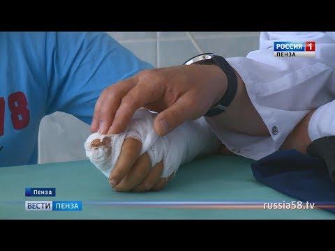 Пензенские хирурги восстановили подростку большой палец