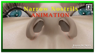 Rhinoplasty Animation - How can Wide Nostrils be Narrowed?