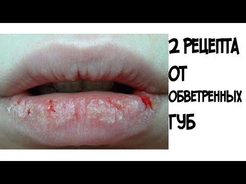 Как БЫСТРО вылечить обветренные губы//2 эффективных рецепта