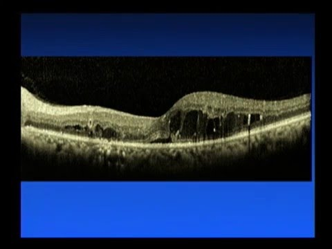 Diabetic Macular Edema - Saving Sight 2014