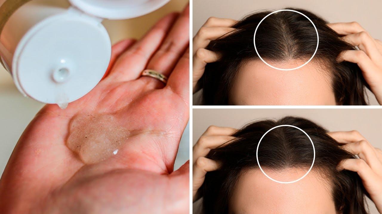 Homemade Comfrey Shampoo to Revitalize and Grow Hair Faster