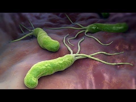 HELICOBACTER PYLORI (Ulcera Peptica- Ulcera Gastrica ...