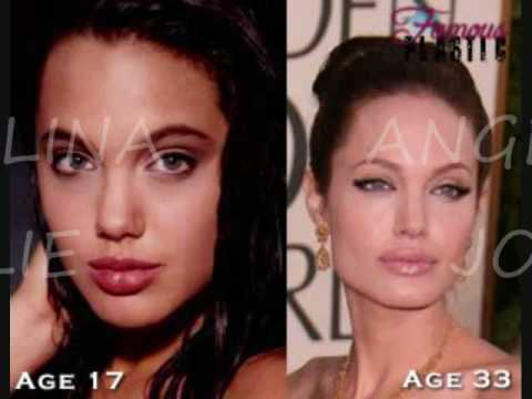 Plastic Surgery Good Or Bad 0002 Wmv Youtube
