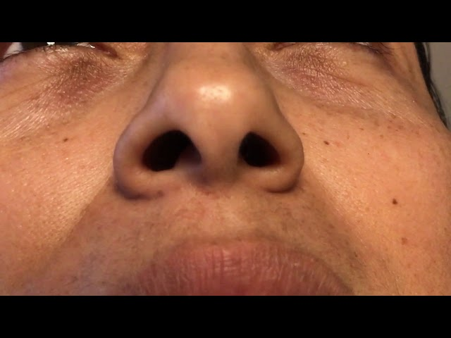 9 Years Out From Hispanic Rhinoplasty CloseUp of Incision