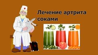 Лечение артрита соками Артрит лечение народными средствами