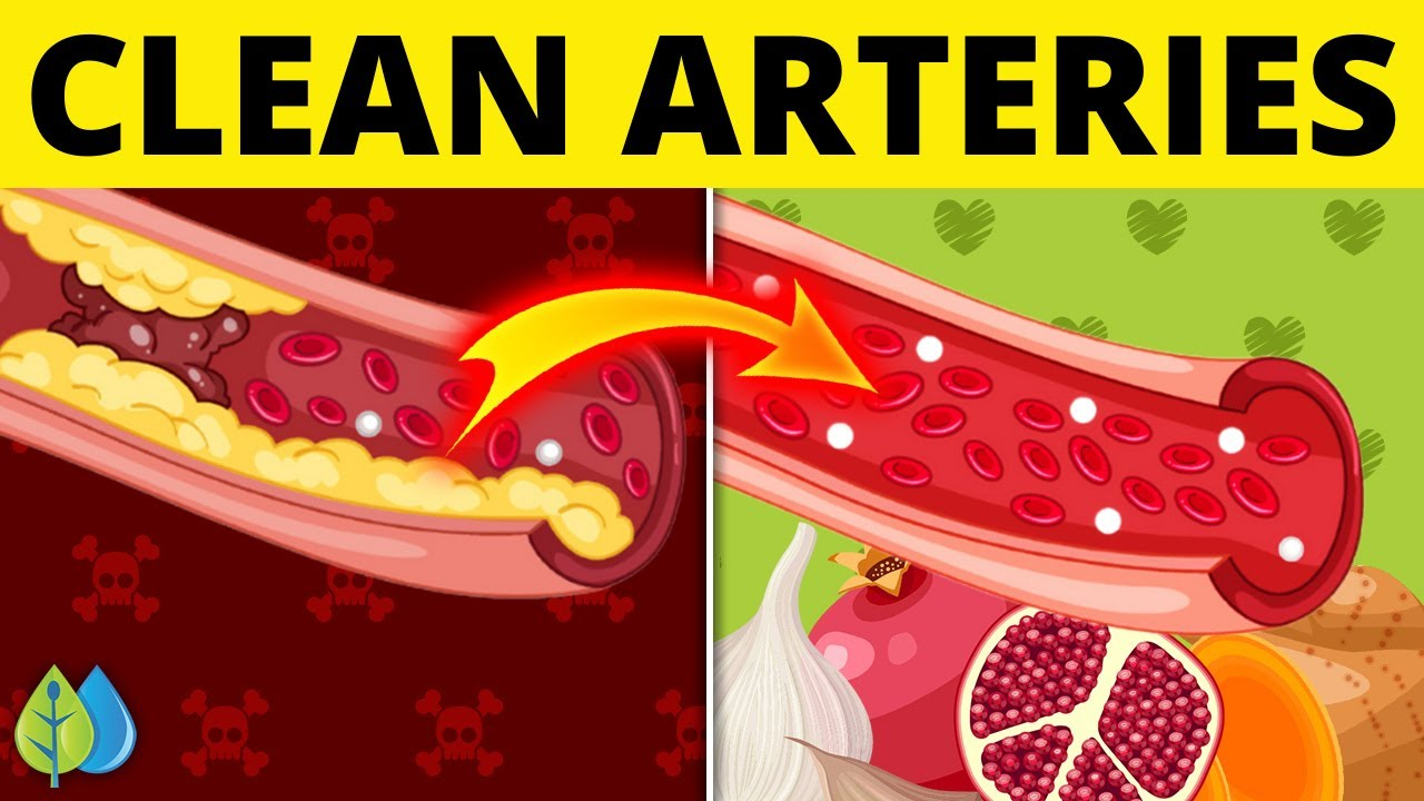 ❣️Top 7 Foods that Unclog Arteries Naturally and Prevent Heart Attack