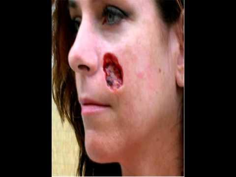 Basal carcinoma cell facial surgery