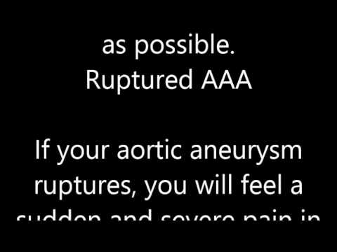 Abdominal Aortic Aneurysm Symptoms