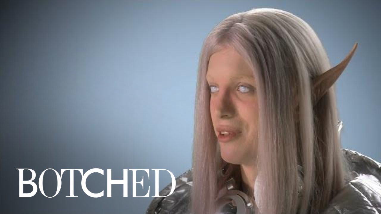 "Download ""Botched"" Patient Wants to Be the Perfect Space Elf 