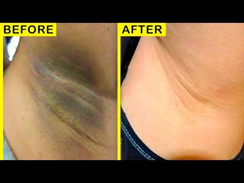 How To Lighten Dark Elbows, Underarms And Knees Fast at Home