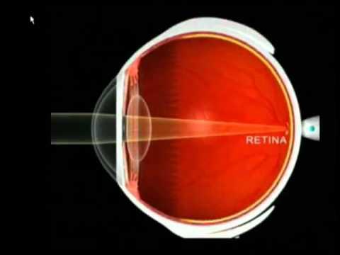 Hipermetropia, Miopia, Astigmatismo  Enfermedades Visuales, Problemas Refractivos y LASIK   YouTube