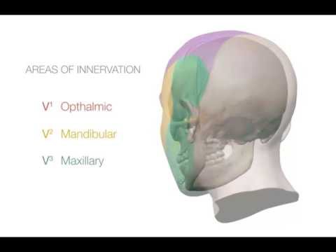Treatment for Trigeminal Neuralgia: UCSF Neurosurgery.