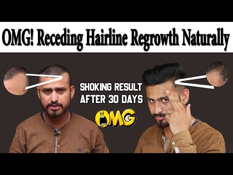 Receding Hairline Regrowth Naturally At Home | How To Stop & Regrowth Receding Hairline Naturally from YouTube · Duration:  8 minutes 16 seconds