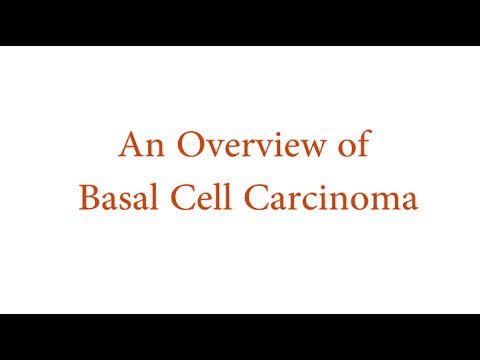 Basal Cell Carcinoma Overview