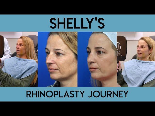 Shelly's Rhinoplasty Journey