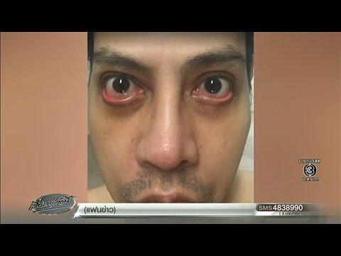 หนุ่มเล่าอุทาหรณ์ทำศัลยกรรมคลินิกดัง เกิดหน้าพัง หลับตาไม่สนิทหวิดจอภาพตาเสื่อม