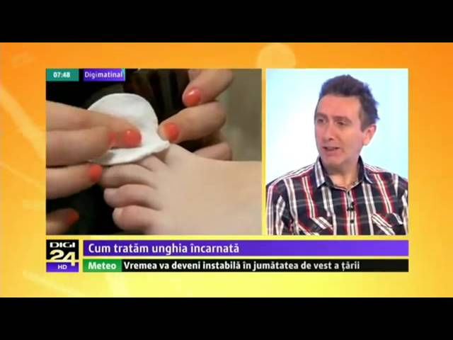 video cum chirurgia de la varicoză)
