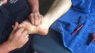 Foot massage and reflexology using tools - Brandon working on Andrew part 3