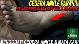 'Ankle Taping', Proses Rehabilitasi Cedera Pergelangan Kaki.